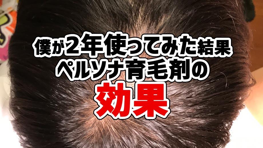 ペルソナ 育毛 剤 口コミ 【体験談】40歳ハゲリーマンがペルソナ育毛剤を6ヵ月試した薄毛への効...